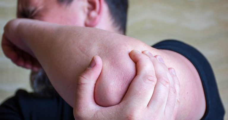 Man experiencing strong pain in elbow