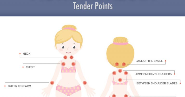 What And Where Are The Tender Points Of Fibromyalgia