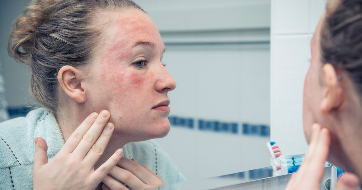 Woman with rash on face looking in mirror