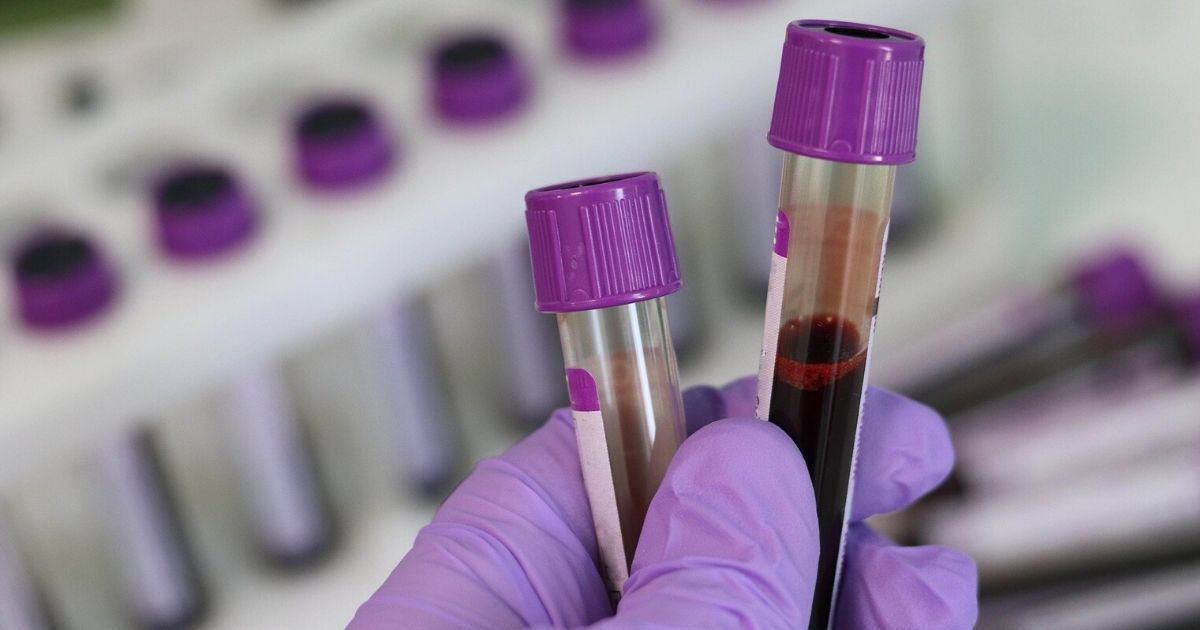 blood test vials in a laboratory